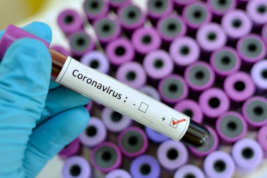 Steckt der Coronavirus die deutsche Wirtschaft an?